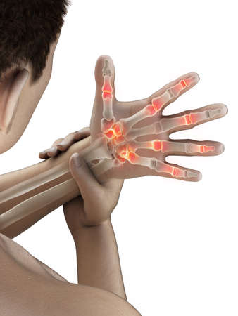 3d rendered medically accurate illustration of a mans painful fingers Stockfoto