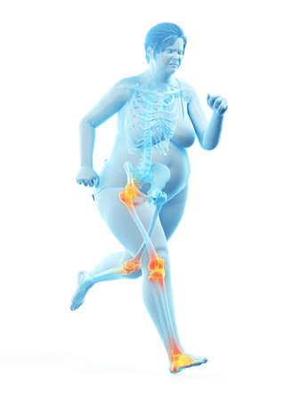 3d rendered medically accurate illustration of the painful joints of a running obese woman