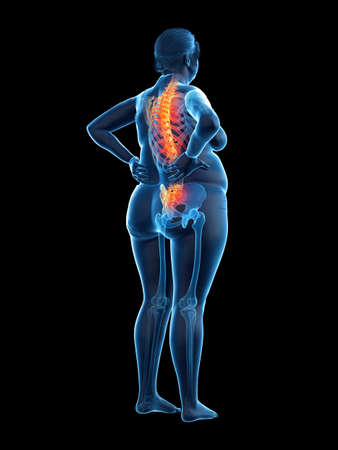 3d rendered medically accurate illustration of an obese womans