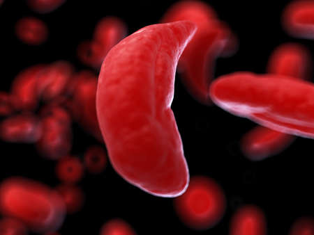 3d rendered medically accurate illustration of sickle cells
