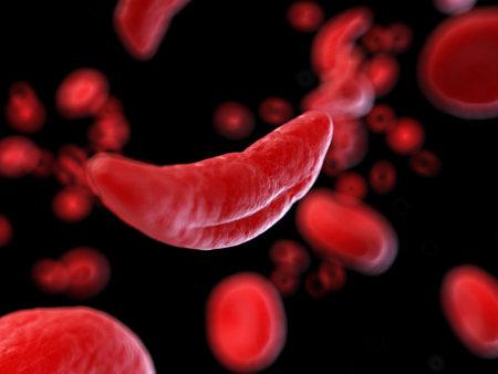 3D gerenderte medizinisch genaue Darstellung von Sichelzellen