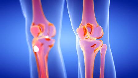 Illustration en rendu 3D des articulations du genou humain et squelettique