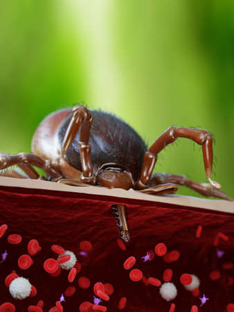 3d rendered illustration showing the sting of a tick penetrating a human artery Stock Photo