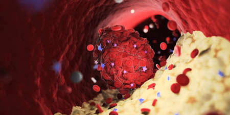 3d rendered medically accurate illustration of a thrombus emerging from a capped plaque Stock Photo