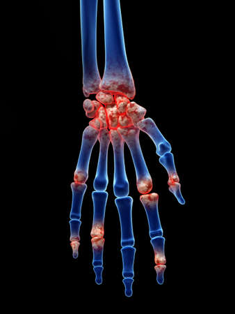 3d rendered medically accurate illustration of arthrosis in the hand Stock Photo