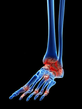 3d rendered medically accurate illustration of arthrosis in the foot
