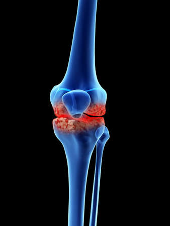 3d rendered medically accurate illustration of arthrosis in the knee Stock Photo