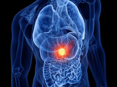 3d rendered medically accurate illustration of pancreas cancer
