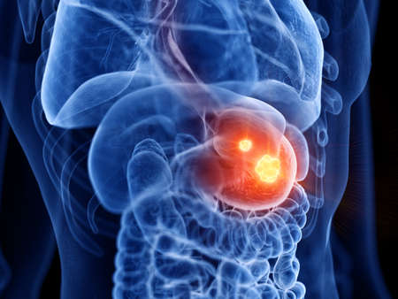 3d rendered medically accurate illustration of stomach cancer