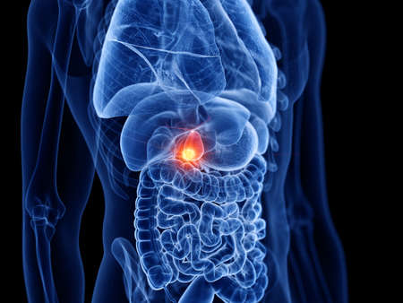3d rendered medically accurate illustration of the gallbladder cancer