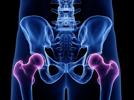 3d rindió la ilustración médicamente exacta de las articulaciones de la cadera