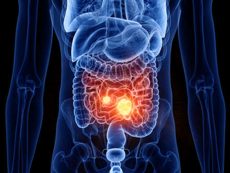 3d rendered medically accurate illustration of small intestine cancer