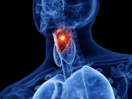 3d rendered medically accurate illustration of larynx cancer
