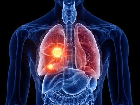 3d rendered medically accurate illustration of lung cancer Stock Photo