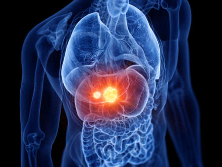 3d rendered medically accurate illustration of liver cancer Stock Photo