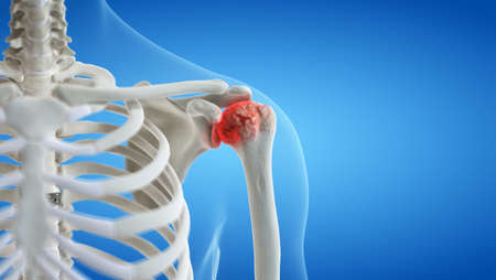3d rendered medically accurate illustration of an arthritic shoulder joint 写真素材