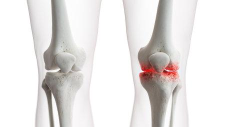 3D-gerenderte medizinisch genaue Darstellung eines arthritischen Kniegelenks Standard-Bild