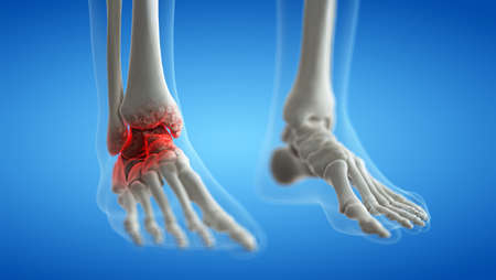 3d rendered medically accurate illustration of an arthritic ankle joint 写真素材