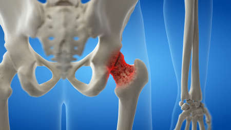 3d rendered medically accurate illustration of an arthritic hip joint