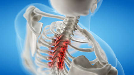 3d rendered medically accurate illustration of an arthritic thoracic spine 写真素材