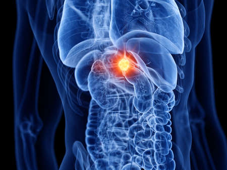 3d rendered medically accurate illustration of adrenal gland cancer