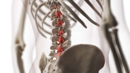 3d rendered medically accurate illustration of an arthritic lumbar spine