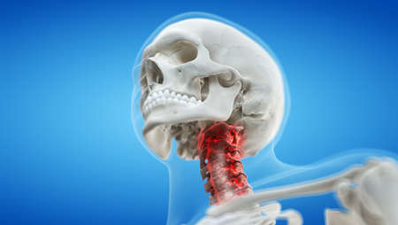 3d rendered medically accurate illustration of an arthritic cervical spine