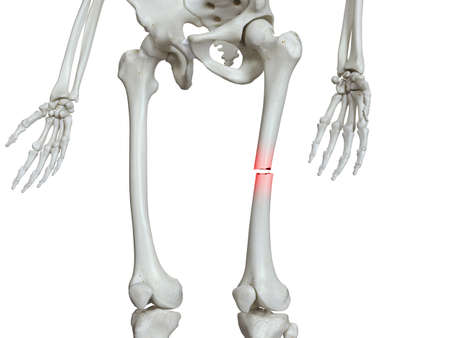 3d rendered medically accurate illustration of a broken femur
