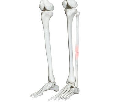 3d rendered medically accurate illustration of a broken fibula 免版税图像