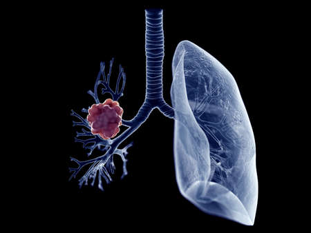 3d rendered medically accurate illustration of a lung tumor Stock Photo