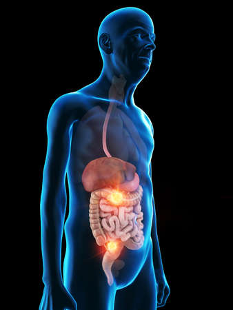 3d rendered medically accurate illustration of an old mans digestive system tumor