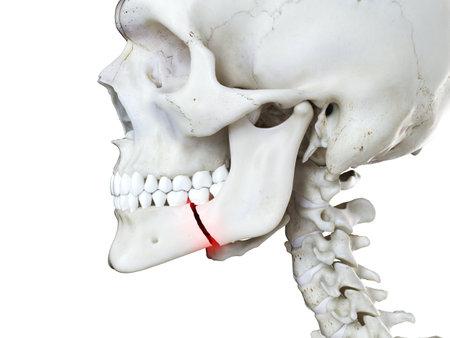 3D gerenderte medizinisch genaue Abbildung eines gebrochenen Kiefers Standard-Bild