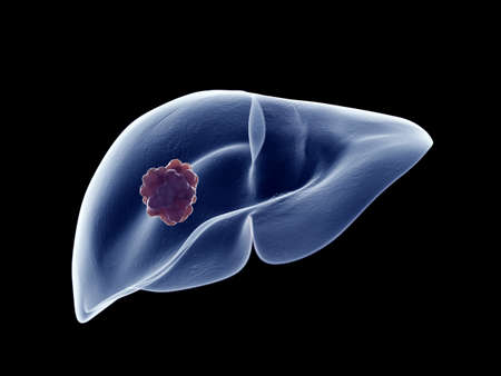 3d rendered medically accurate illustration of a liver tumor