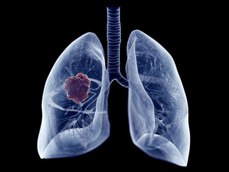 3d rendered medically accurate illustration of a lung tumor Banque d'images