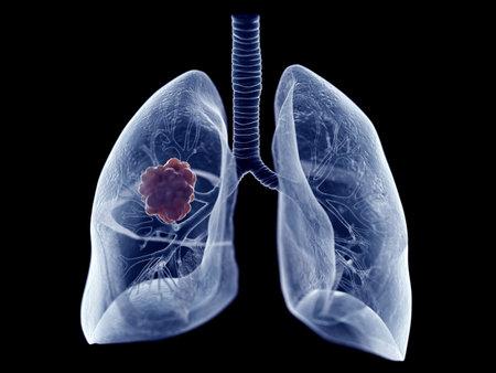 3d rindió la ilustración médicamente exacta de un tumor de pulmón Foto de archivo