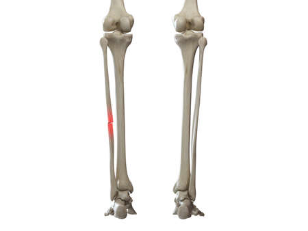 3d rendered medically accurate illustration of a broken fibula