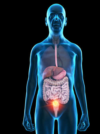 3d rendered medically accurate illustration of an old mans digestive tumor Stock Photo