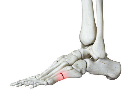 3d rendered medically accurate illustration of a broken foot 免版税图像