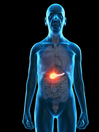3d rendered medically accurate illustration of an old mans pancreas tumor