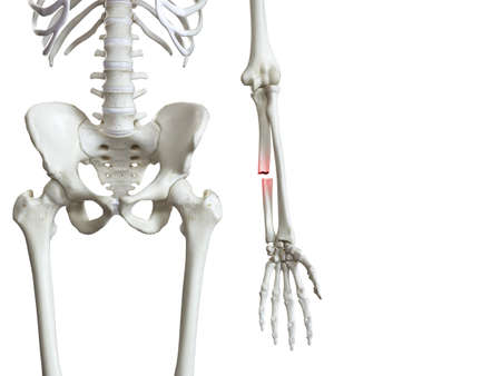 3d rendered medically accurate illustration of a broken ulna Stock Photo