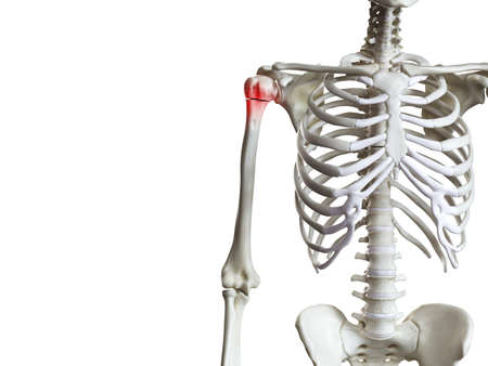 3d rendered medically accurate illustration of a broken humerus Stock fotó