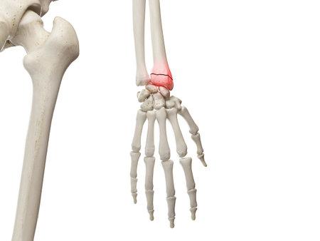 3d ha reso l'illustrazione medicamente accurata di un polso rotto