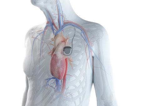 3D gerenderte Darstellung eines alten Mannes mit einem Herzschrittmacher