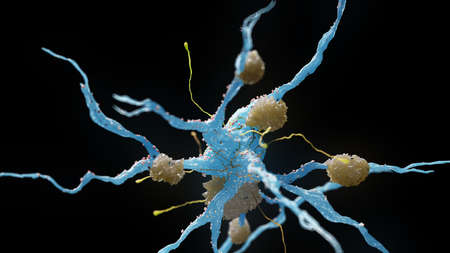 3d rendered medical illustration of nerve cells suffering from alzheimer disease Stock Photo