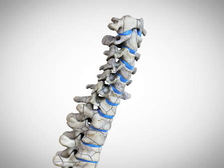 3d rendered medically accurate illustration of a broken spine Standard-Bild - 133027999