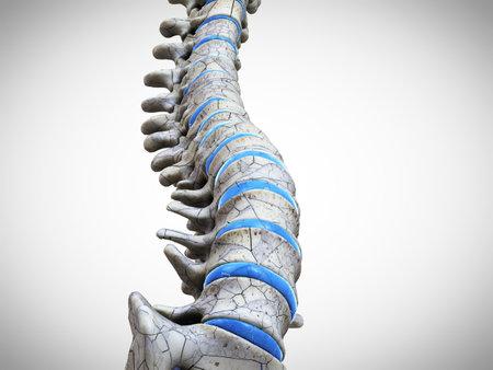 3d rendered medically accurate illustration of a broken spine Standard-Bild - 133028771