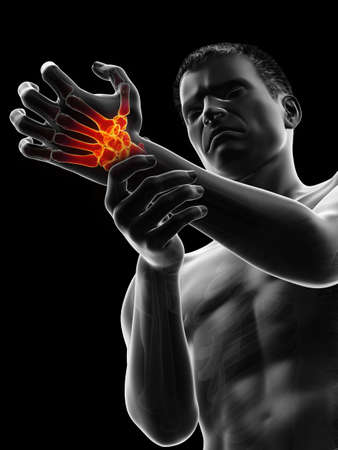 3d rendered medically accurate illustration of a man having a painful wrist 版權商用圖片
