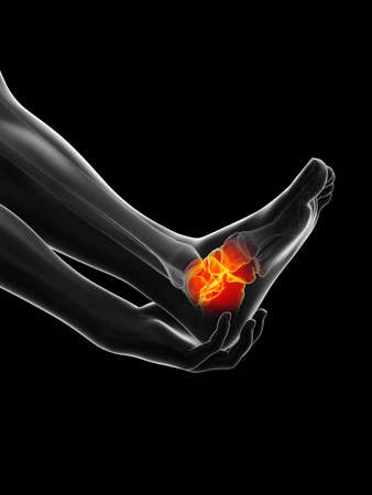 3d rendered medically accurate illustration of a painful ankle 版權商用圖片