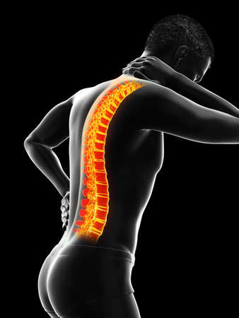 3d rendered medically accurate illustration of man having a backache 版權商用圖片