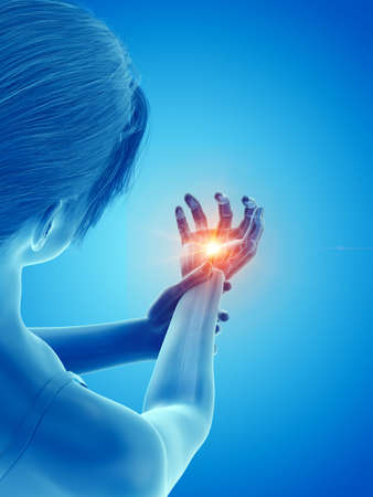 3d rendered medically accurate illustration of a woman having a painful hand